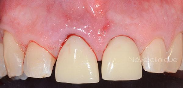 dental implant - Geneva