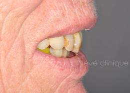 Implants dentaires - Genève