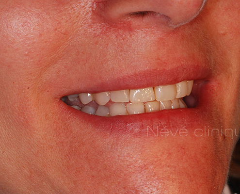 dental implant - Geneva