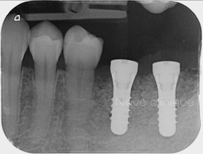 Greffe osseuse - Genève