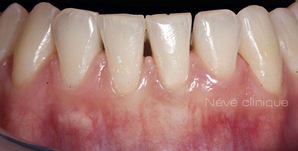 Gingival graft -Geneva