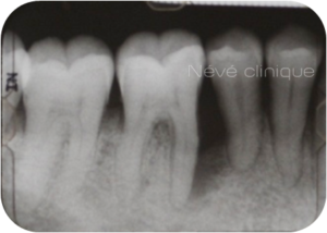 Parodontologie - Genève